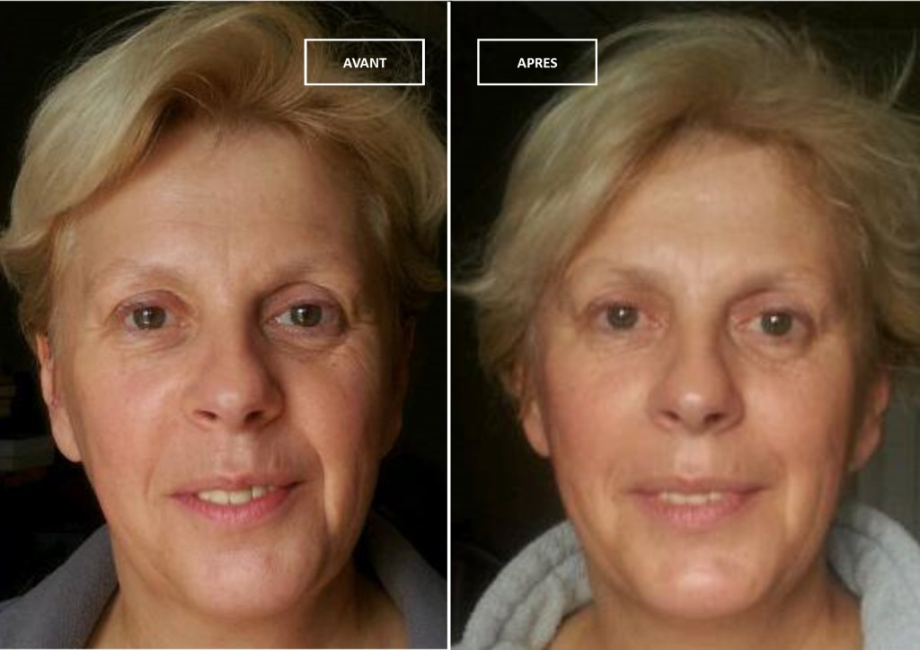 Kobido soin anti-age efficace, avant et quatre semaines après